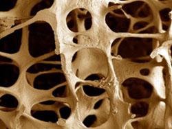 Боль в тазобедренном суставе – чаще всего она возникает постепенно,