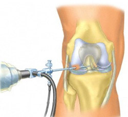 Метод артроскопии коленного сустава
